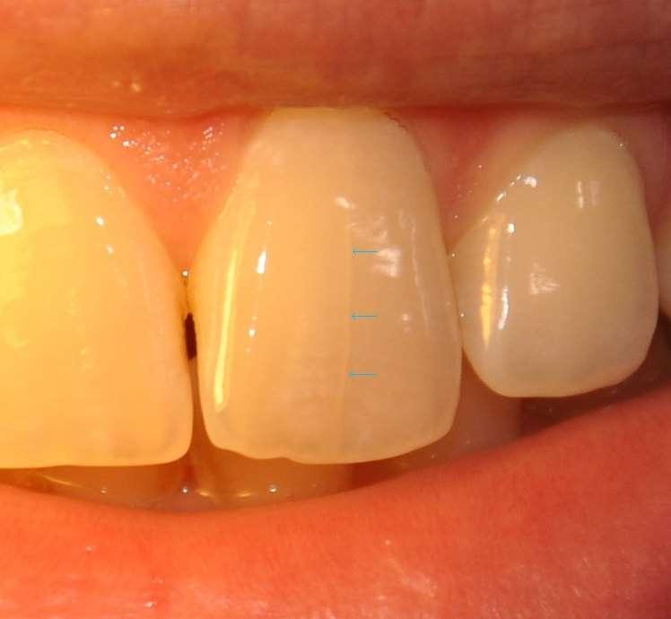 отбеливание зубов 2018